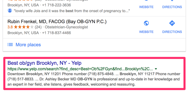 Yelp for doctors in google search results